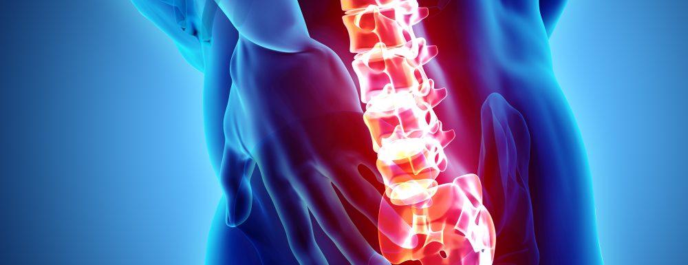 Varför marklyft definitivt inte är en ryggövning