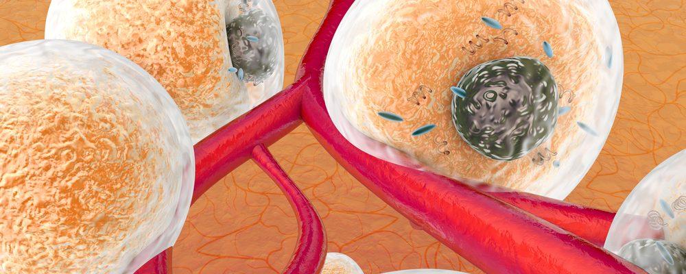 Symptom på lipödem – hur du vet om du har det och vad du kan göra åt det