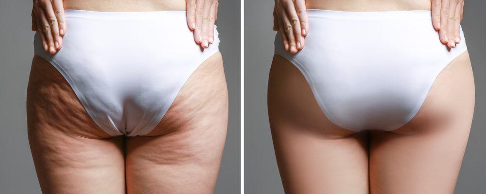 Okänd sjukdom liknar fettvikt på fel ställen